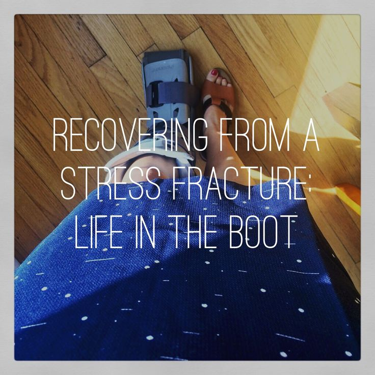 Recovering From a Stress Fracture: Life In the Boot