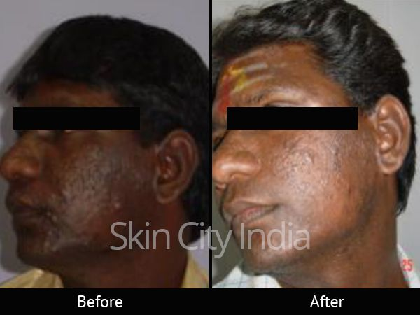Skin City India - Fairness Clinic