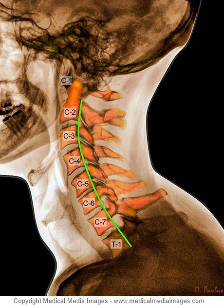 Color X-Ray of the Cervical Spine showing a Lordosis (curvature) and numbering of the Vertebrae. Ideal for Websites and Publications. http://www.medicalmediaimages.com/color-x-ray-cervical-spine-lordosis-anatomy/664