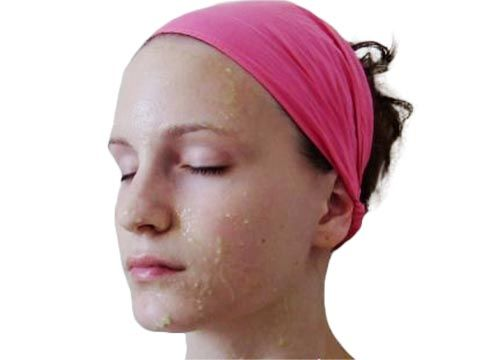 White granules on facial skin