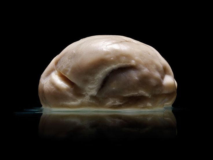 Is this the most extraordinary human brain ever seen? This rare condition, also known as lissencephaly, often leads to death before the age of 10. It can cause muscle spasms, seizures and, as it vastly reduces the surface area of this key part of the brain, a range of learning difficulties.