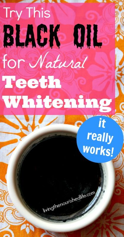 how to get really white teeth fast