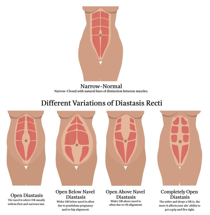 Do you have diastasis recti? Here is a diastasis recti test which will help you diagnose yourself in less than 3 minutes.
