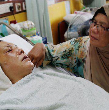 Kota Bharu: Wajah gadis berusia 22 tahun,  Nur Shafiqa Lah  yang ditoreh penyamun dalam kejadian pecah rumah kelmarin boleh dirawat menerusi pembedahan rekonstruktif, kata Pengarah Kampus Kesihatan Universiti Sains Malaysia (USM) Datuk Dr Mafauzy Mohamed.