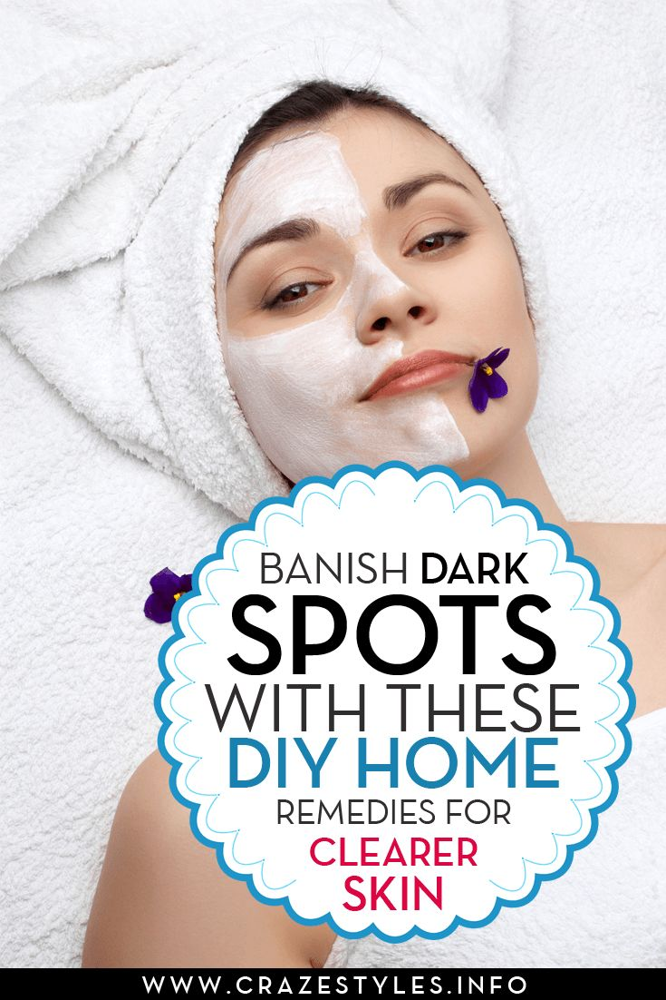 If sudden breakouts or lack of SPF have left you struggling to conceal dark spots on your almost even complexion, here are a few natural home remedies to help you fade away those stubborn sp…