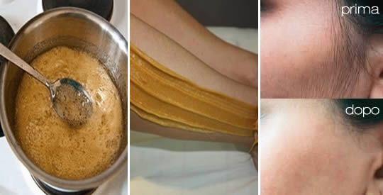 Come preparare una crema depilatoria con limone e zucchero | Rimedio Naturale