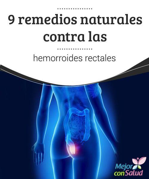 9 remedios naturales contra las hemorroides rectales  Cuando se trata de hemorroides rectales, puede aplicarse aloe vera para reducir la sensación de ardor. Aquí te damos otros excelentes remedios.