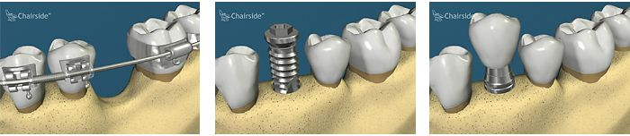 There are situations where grafting is very difficult such as the illustration shown. As the tooth moves across to the new location it grows bone along the way. A dental implant can then be placed in the newly formed bone. Check out 1888implant.com for more information on implant dentistry, educational videos, and an implant specialist near you.