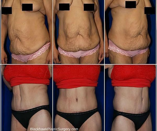 Extreme Weight Loss Surgery Body Contouring Extreme Weight Loss