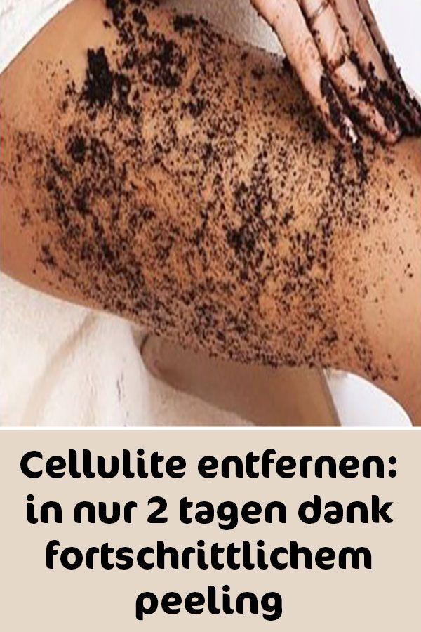 Cellulite entfernen: in nur 2 tagen dank fortschri…