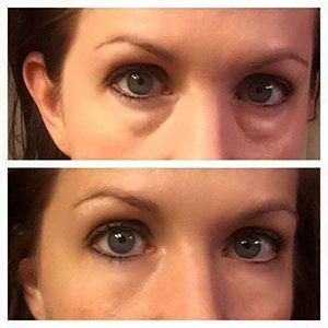 Instantly Ageless: Before and after of the world's best 90 second anti-aging wrinkle cream. Keywords Associated- best anti aging cream, anti aging eye cream, best anti aging products, wrinkle cream reviews, under eye circles, under eye bags, instantly ageless reviews, instantly ageless testimonials