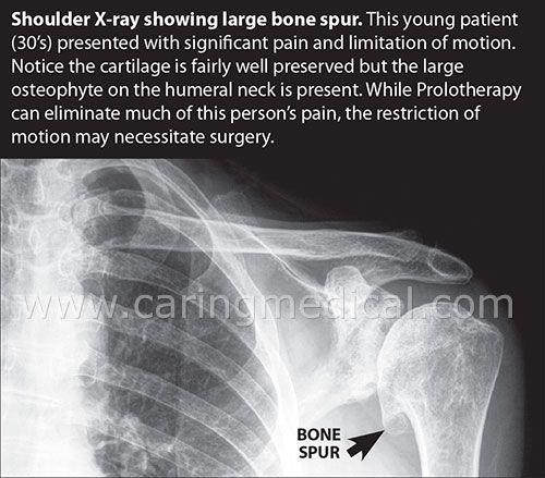 Xray of shoulder bone spurs