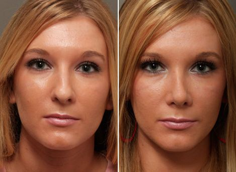 http://rhinoplasty.bestcompanyforyou.com/summerlin-south-nevada-rhinoplasty-surgeon/ We offer the best and most trusted rhinoplasty surgeries in the Summerlin South, Nevada area. Get your nose surgery here. Contact us for a price.