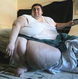 Obesity | Biomedical Science