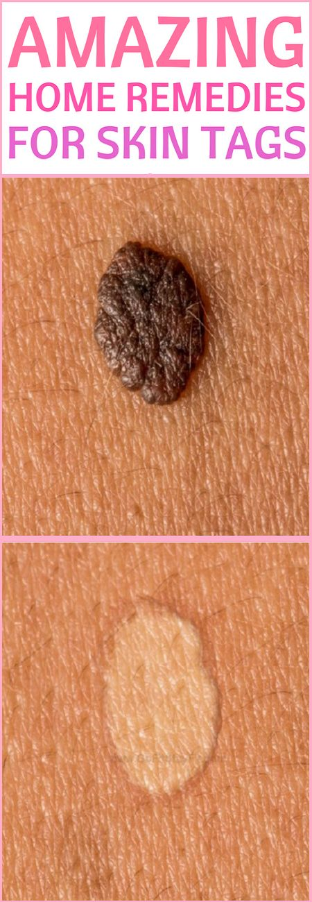 In this article we will present you the most effective natural remedies to treat skin tags.