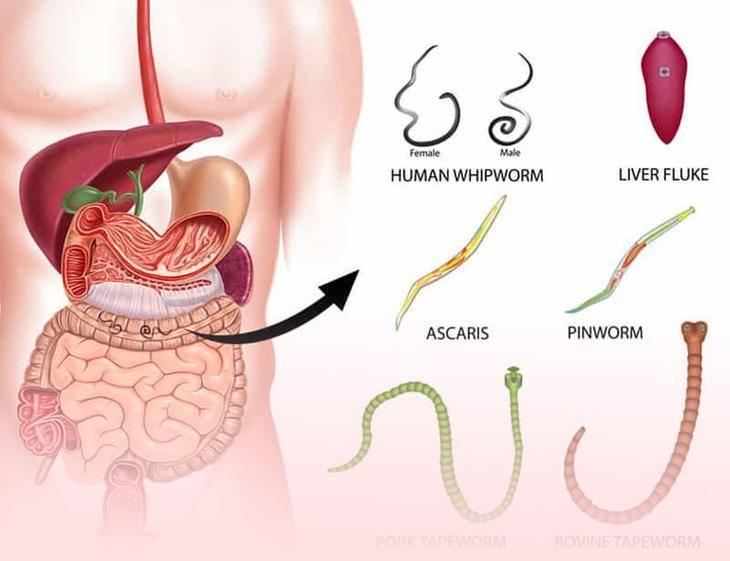 Pinworm receptek, Horgász Webáruház