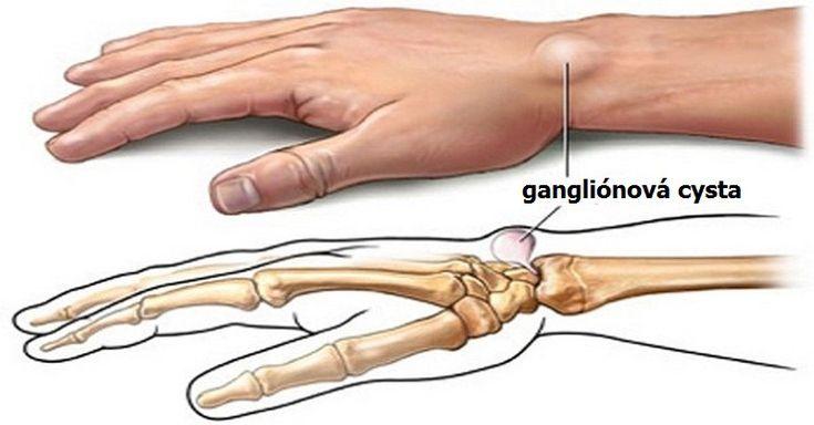 5 domácich liekov na gangliónové cysty (zhluky nervových buniek)