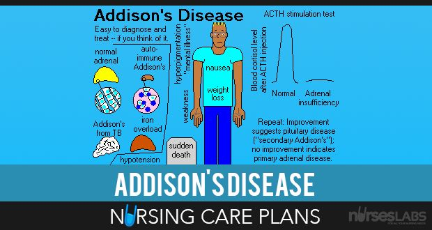 3 Addison's Disease Nursing Care Plans | Nursing care ...