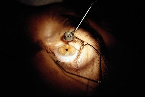 cost of lasik eye surgery cost of lasik eye surgery