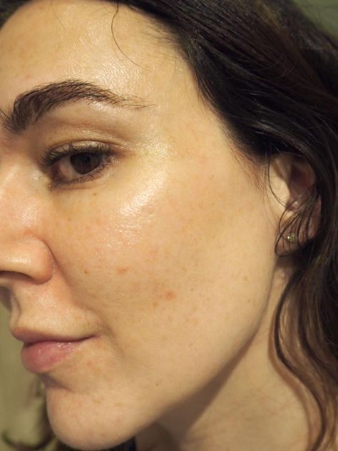 Does the Ordinary skincare really work for acne pr…