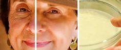 Muchas mujeres desean rejuvenecer sin tener que gastar un dineral en costosos productos de belleza, lamentablemente el paso de los años, la exposición al sol, el uso de cosméticos, la mala alimentación, los cambios hormonales y muchos otros factores, hacen que nuestra piel pierda elasticidad, firmeza y empiece a lucir arrugada antes de tiempo. Anuncios …