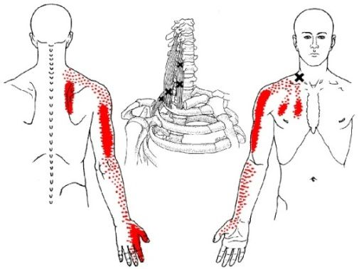 the scalene muscle trigger points and referred pain patterns