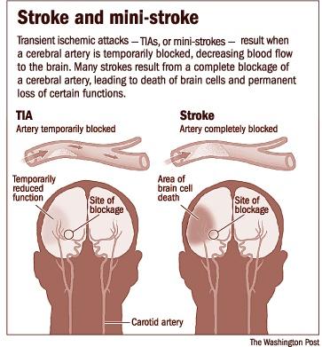 Stroke vs TIA