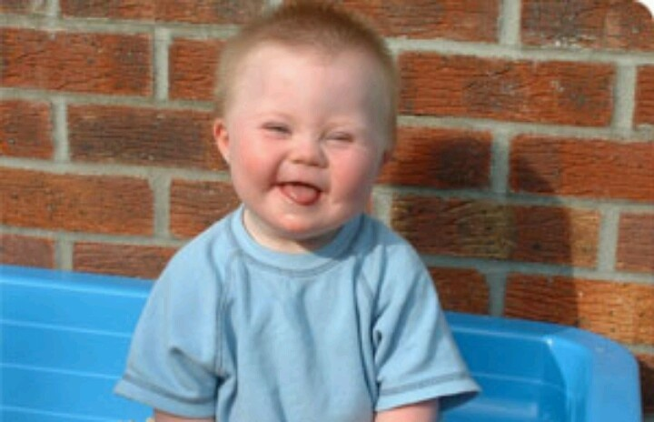 79 Best Down Syndrome Babies For Sculpting Ideas Images On