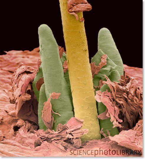 25 best images about Parasites on Pinterest | Videos, Eyelashes ...