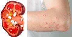 Gli 8 sintomi dei problemi ai reni e come rinforzarli