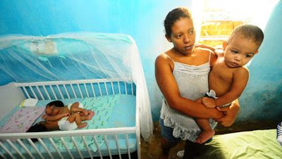 Mulher dá a luz a gêmeos siameses unidos pelo abdômen em Recife | S1 Noticias