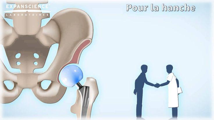 Pourquoi la pose de la prothèse est-elle envisagée ? | Arthrolink