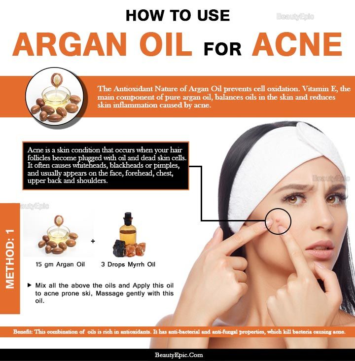 How To Use Argan Oil For Acne Argan Oil Acne Acne Oil Skin