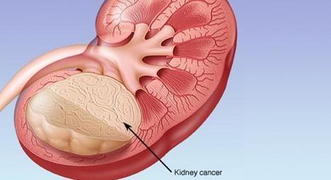 Kidney Cancer Hospital, Kidney Cancer Treatment, Treatment for Kidney Cancer