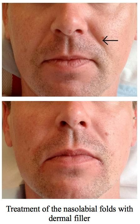 Nasolabial fold treatment before after photos. Not just for the Ladies!