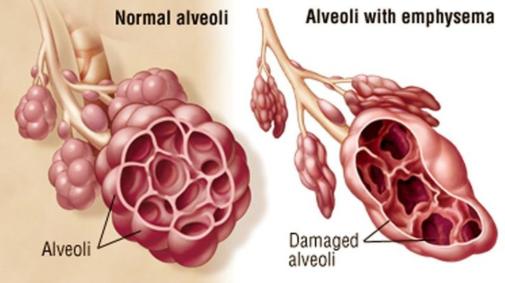 Emphysema is a chronic lung condition in which the lungs' natural airspaces, called alveoli, become larger but decrease in number. The tissue surrounding the alveoli loses elasticity so that the airspaces can no longer expand and shrink as usual. This reduces the amount of oxygen transferred by the lungs to the bloodstream, making it more difficult for you to breathe.