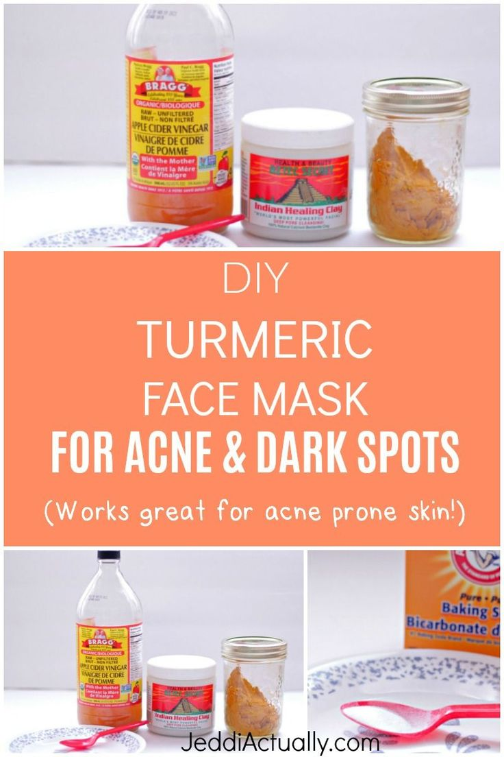 The Best DIY Face Mask For Removing Acne & Dark Spots