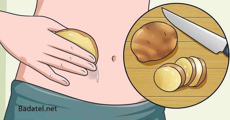 Toto sa stane s vráskami a škvrnami, keď si na pokožku priložíte zemiaky