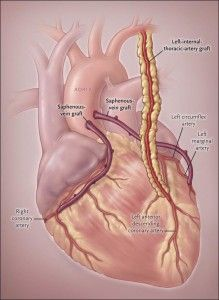 Appropriate selection of patients for coronary-artery bypass grafting (CABG) is critical to ensure good outcomes. The evaluation of patients for CABG relies on a systematic assessment of the characteristics and coronary anatomy known to be associated with a survival benefit from CABG as compared with medical therapy or percutaneous coronary intervention (PCI). There is increasing... Read More...
