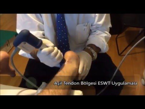 Aşil Tendon Bölgesi ESWT Uygulaması, Ayak Cerrahisi, Ortopedi