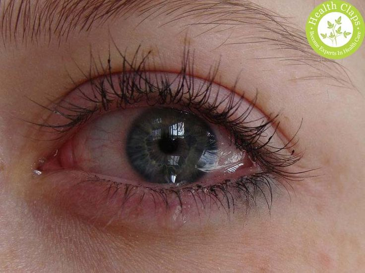 Common Eye Diseases in Humans and its Symptoms............... Eye diseases in humans arises due to allergies, infections and some genetic problems. Here are the common eye diseases and symptoms. These diseases include glaucoma, watery eyes.