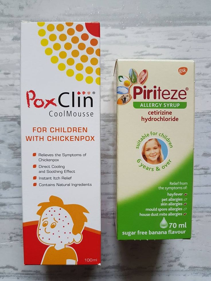 Handy Tips On Coping With Chicken Pox #chickenpox