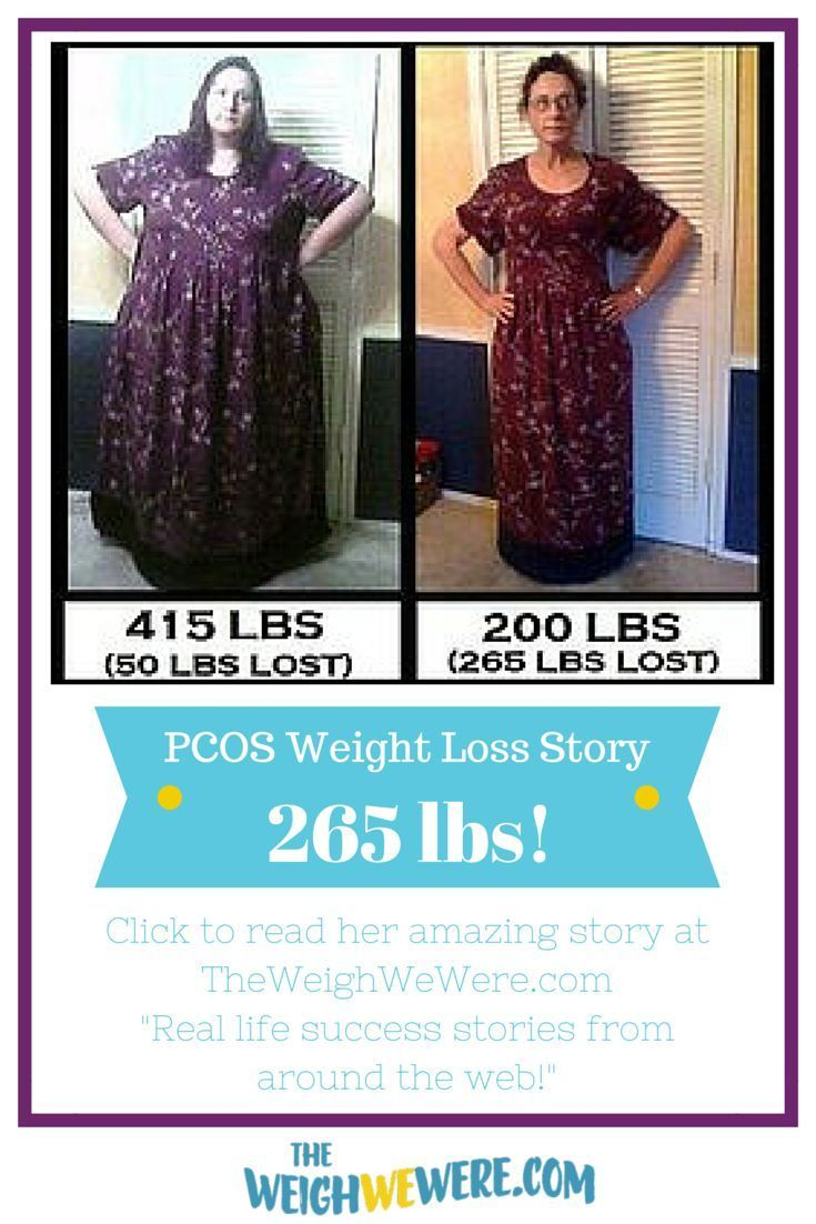 weight loss success stories with pcos