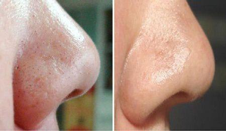 Punctele negre sunt o problema enervanta atat pentru femei cat si pentru barbati. Acestea apar mai frecvent in timpul adolescentei, atunci cand puritatea pielii