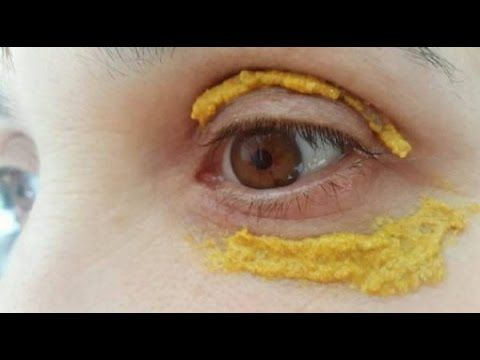 She Put Turmeric Around The Eyes And 5 Days Later, Something Incredible Happened!