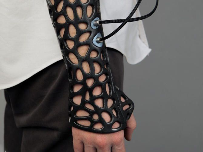 A stylish-looking 3D-printed cast for broken bones uses an ultrasonic pulse generator to help stimulate the growth of new bone.