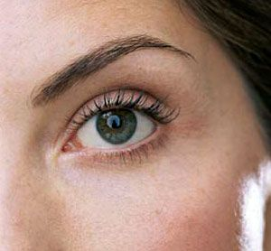 Home Remedies for Chronic Dry Eye-This irritating condition sends millions of people searching from home remedies #DryEye #remedies