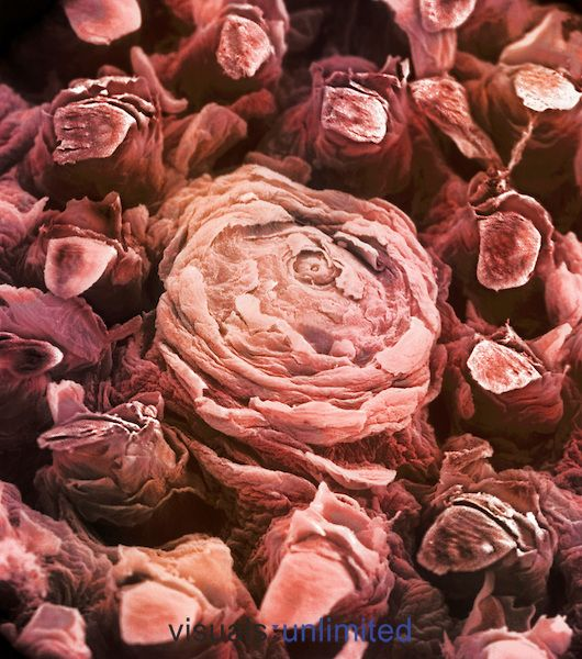 Tongue showing taste bud, filiform papillae and fungiform papillae. SEM.