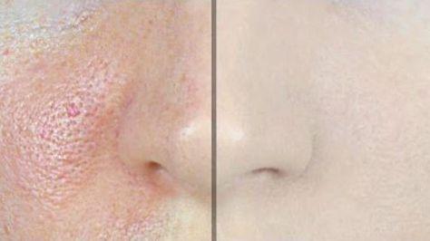 Les personnes ayant une peau grasse ont souvent des pores dilatés et visibles qu'ils détestent. De ce fait, ces gens essaient de rendreleurs pores moins visibles enles rétrécissant. Bien sûr, il y a beaucoup de produits que vous pouvez acheter qui resserrent la peau et réduisent l'apparence des pores dilatés, mais il estégalementpossible de préparer …