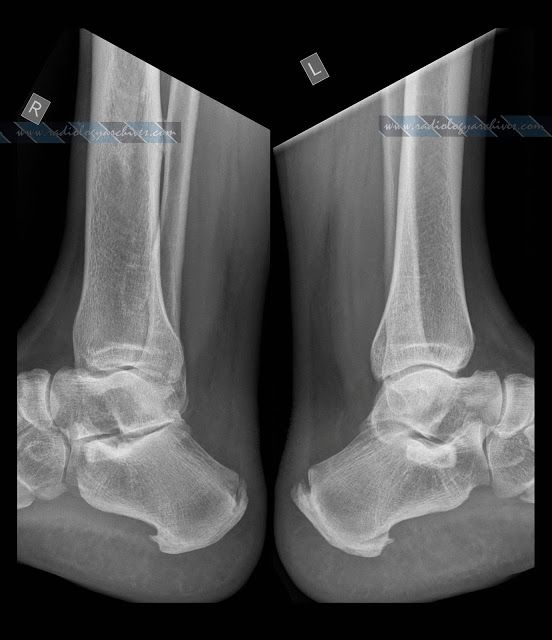Haglund* Syndrome & Plantar Calcaneal Spurs